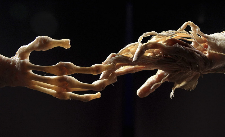 "Plastinated human hands are seen during the media viewing for the exhibition ""The Human Body"" in Ostend"